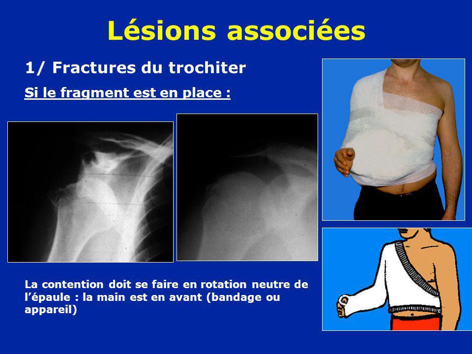 Lésions associées 1/ Fractures du trochiter Si le fragment est en place : La contention doit se faire en rotation neutre de lépaule : la main est en a