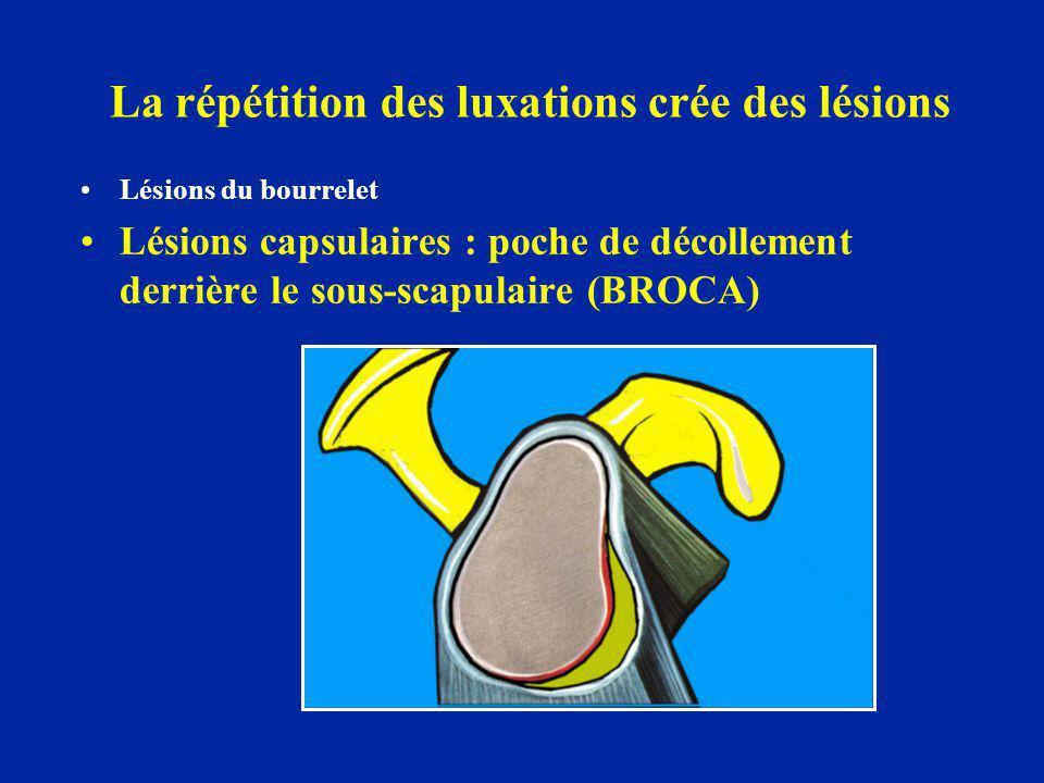 La répétition des luxations crée des lésions Lésions du bourrelet Lésions capsulaires : poche de décollement derrière le sous-scapulaire (BROCA)