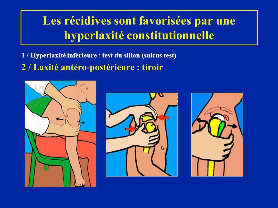 Les récidives sont favorisées par une hyperlaxité constitutionnelle 1 / Hyperlaxité inférieure : test du sillon (sulcus test) 2 / Laxité antéro-postér