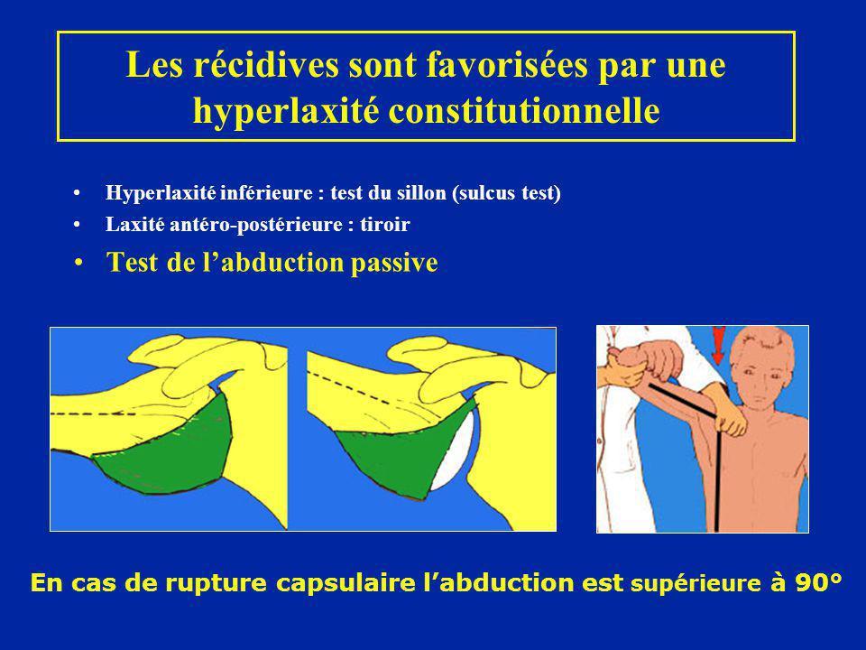 Les récidives sont favorisées par une hyperlaxité constitutionnelle Hyperlaxité inférieure : test du sillon (sulcus test) Laxité antéro-postérieure :
