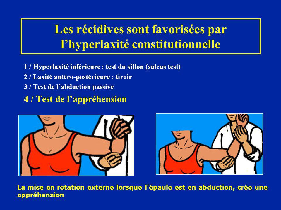 Les récidives sont favorisées par lhyperlaxité constitutionnelle 1 / Hyperlaxité inférieure : test du sillon (sulcus test) 2 / Laxité antéro-postérieu