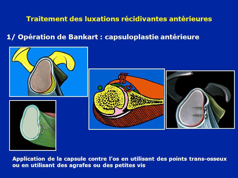 Traitement des luxations récidivantes antérieures 1/ Opération de Bankart : capsuloplastie antérieure Application de la capsule contre los en utilisan