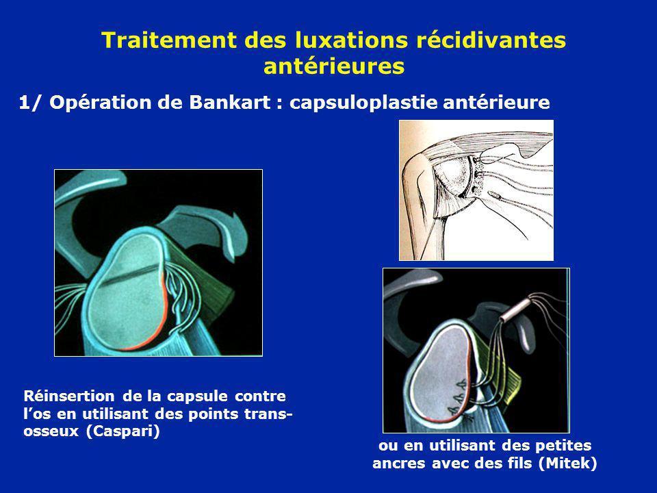 Traitement des luxations récidivantes antérieures 1/ Opération de Bankart : capsuloplastie antérieure Réinsertion de la capsule contre los en utilisan