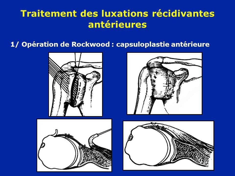 Traitement des luxations récidivantes antérieures 1/ Opération de Rockwood : capsuloplastie antérieure