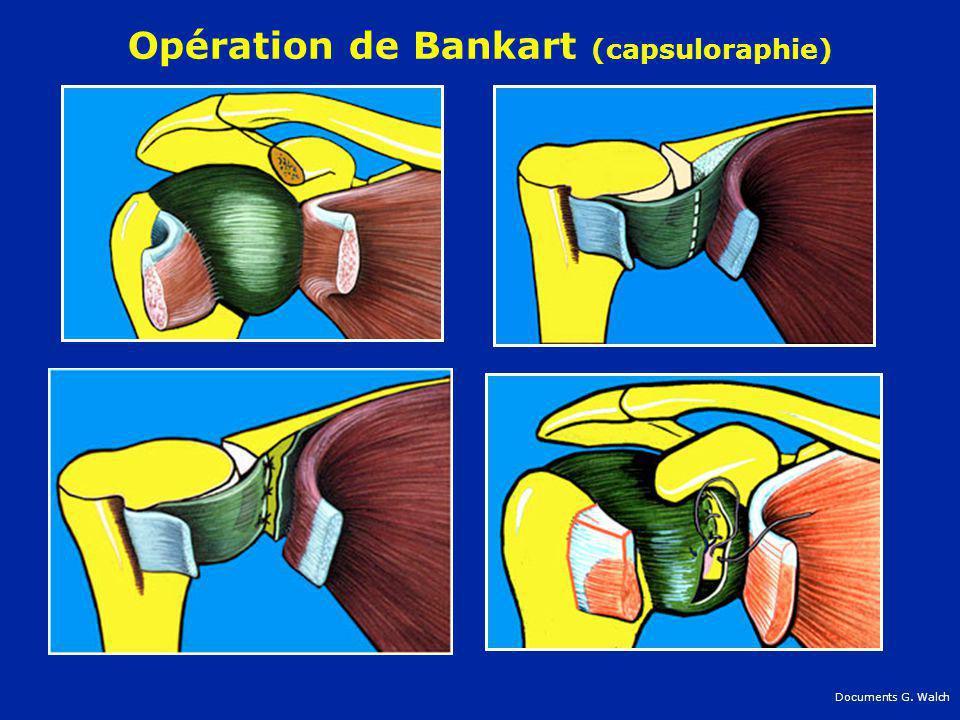 Opération de Bankart (capsuloraphie) Documents G. Walch