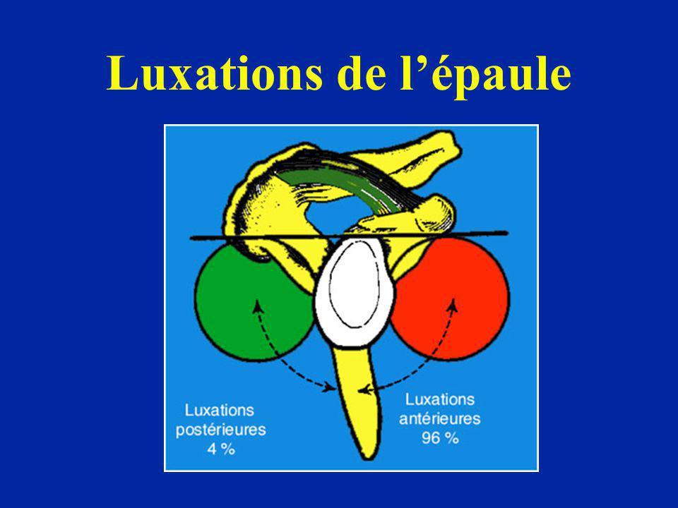 La répétition des luxations crée des lésions Lésions du bourrelet Lésions capsulaires : poche de décollement derrière le sous- scapulaire (BROCA) Encoche céphalique Lésions du rebord antérieur de la glène