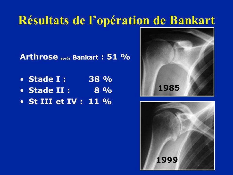 Arthrose après Bankart : 51 % Stade I : 38 % Stade II : 8 % St III et IV : 11 % 1999 1985 Résultats de lopération de Bankart