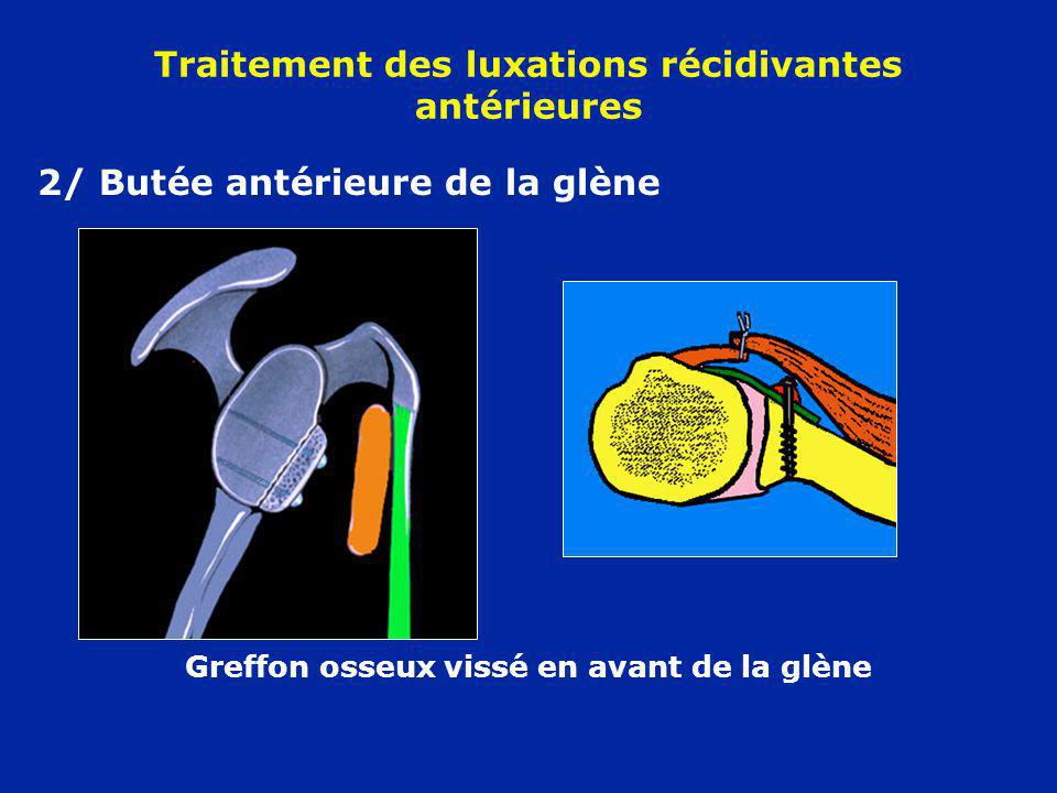 2/ Butée antérieure de la glène Greffon osseux vissé en avant de la glène Traitement des luxations récidivantes antérieures