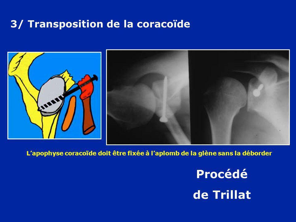 3/ Transposition de la coracoïde Procédé de Trillat Lapophyse coracoïde doit être fixée à laplomb de la glène sans la déborder