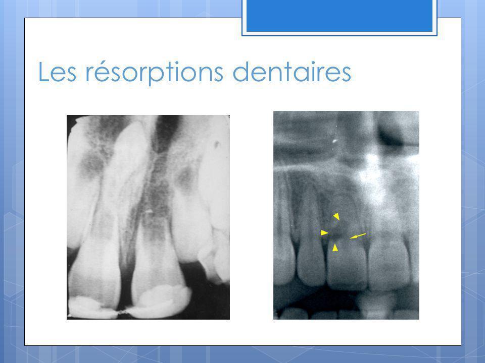 Résorption normale des dents primaires La rhizalyse est la destruction des racines des dents temporaires normales et nécessaire.