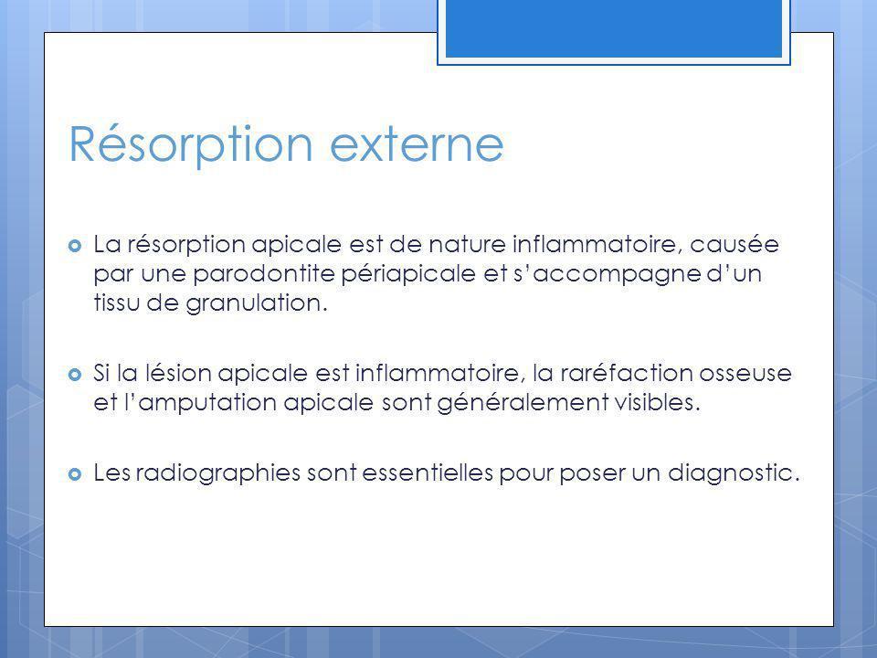 Résorption externe La résorption apicale est de nature inflammatoire, causée par une parodontite périapicale et saccompagne dun tissu de granulation.