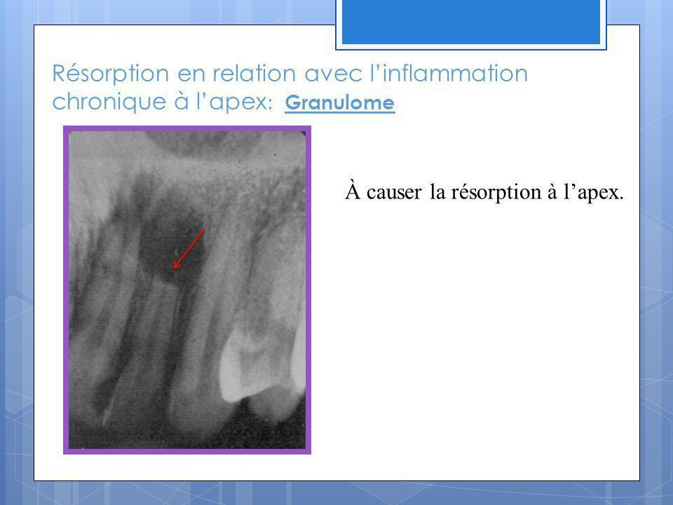 Résorption en relation avec linflammation chronique à lapex : Granulome À causer la résorption à lapex.