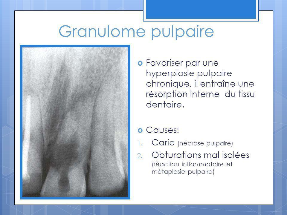 Granulome pulpaire Favoriser par une hyperplasie pulpaire chronique, il entraîne une résorption interne du tissu dentaire. Causes: 1. Carie (nécrose p