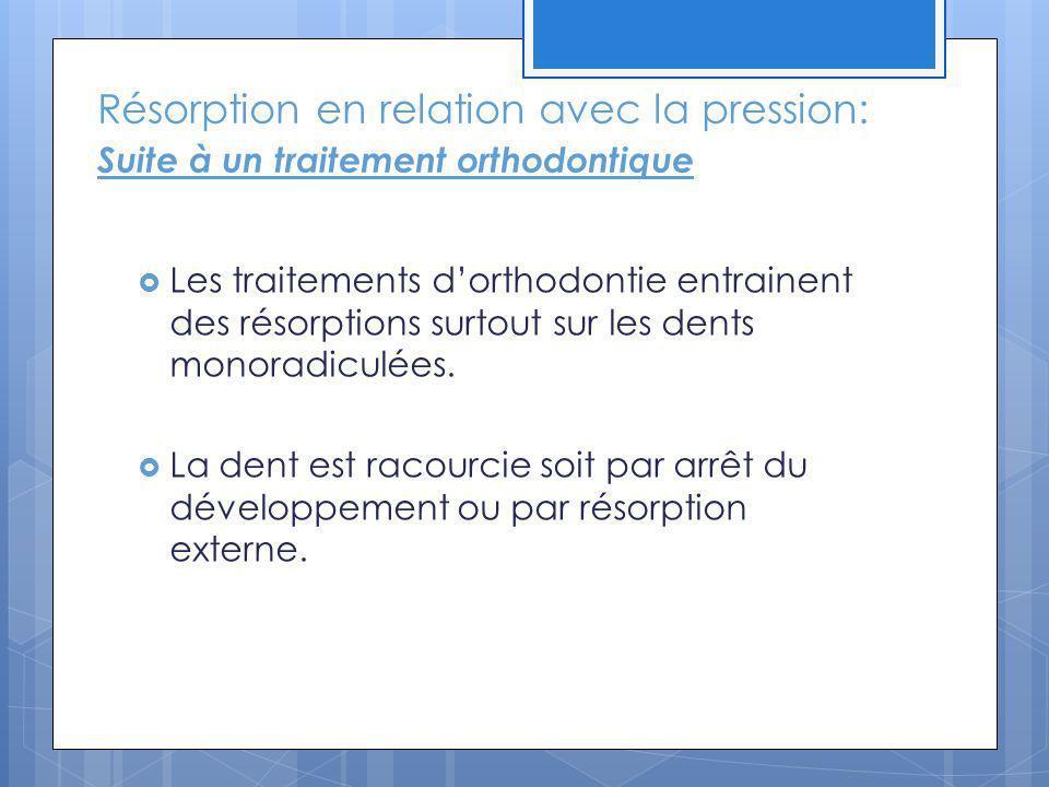 Résorption en relation avec la pression: Suite à un traitement orthodontique Les traitements dorthodontie entrainent des résorptions surtout sur les d