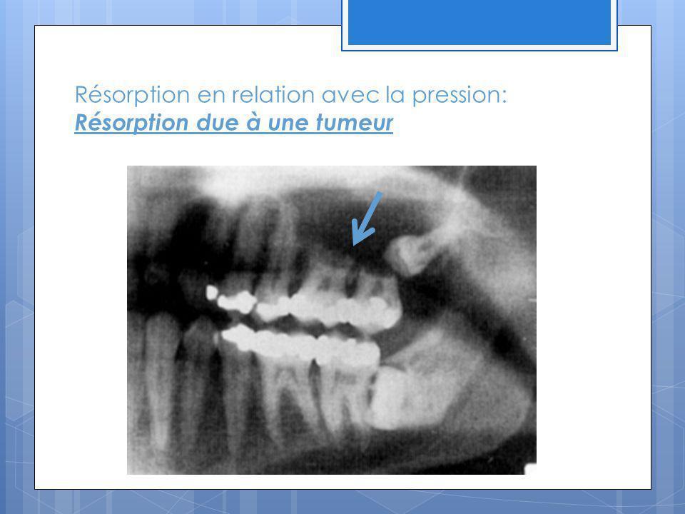 Résorption en relation avec la pression: Résorption due à une tumeur