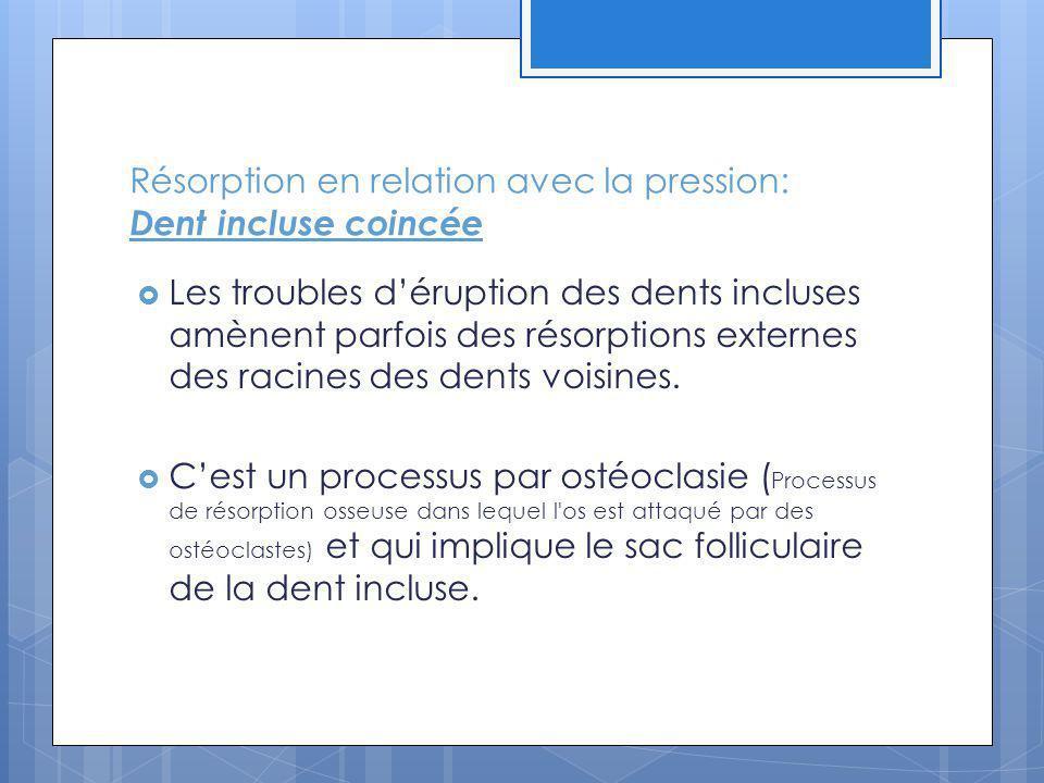 Résorption en relation avec la pression: Dent incluse coincée Les troubles déruption des dents incluses amènent parfois des résorptions externes des racines des dents voisines.