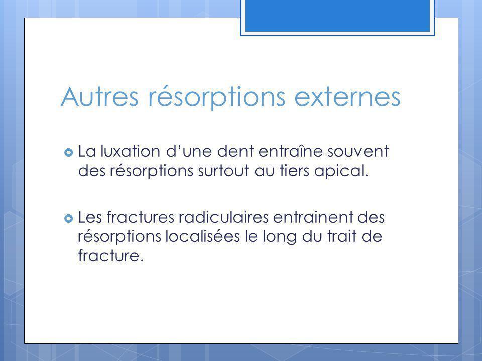 Autres résorptions externes La luxation dune dent entraîne souvent des résorptions surtout au tiers apical. Les fractures radiculaires entrainent des
