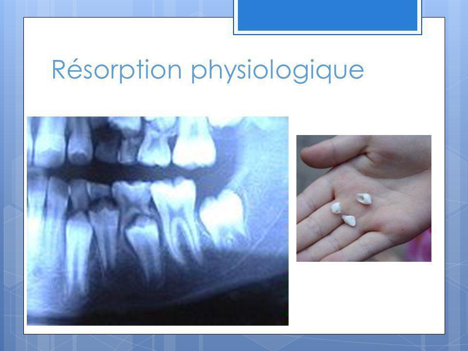 Autres résorptions externes La luxation dune dent entraîne souvent des résorptions surtout au tiers apical.