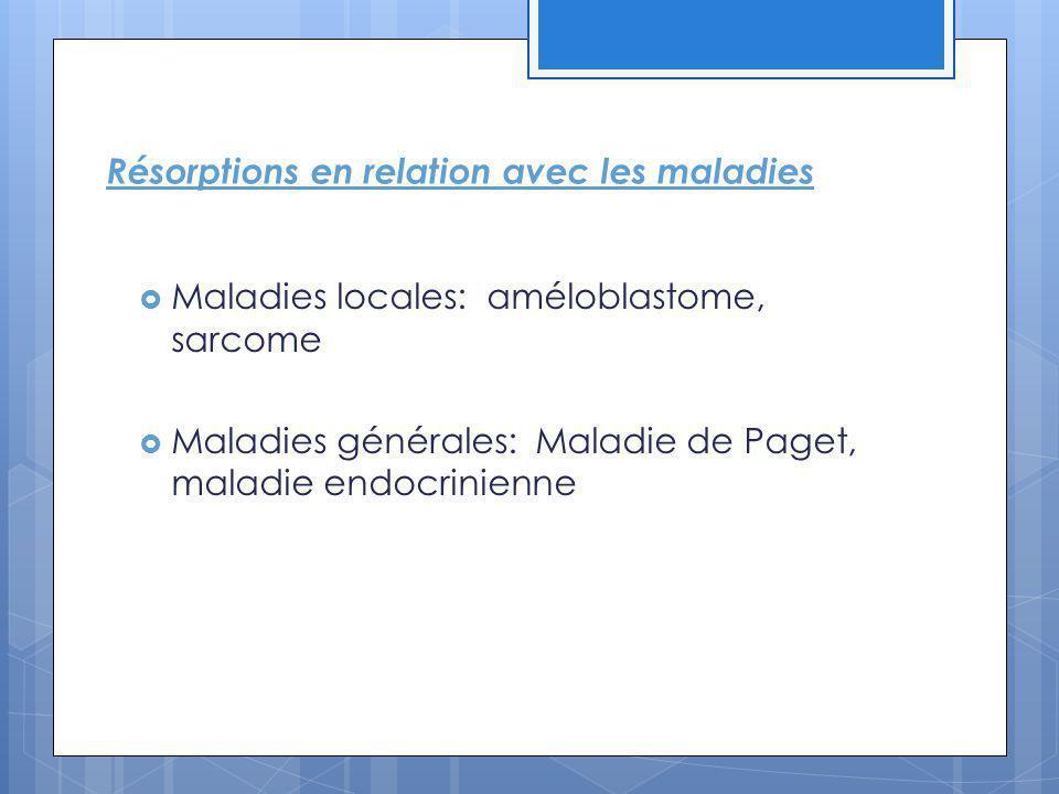 Résorptions en relation avec les maladies Maladies locales: améloblastome, sarcome Maladies générales: Maladie de Paget, maladie endocrinienne