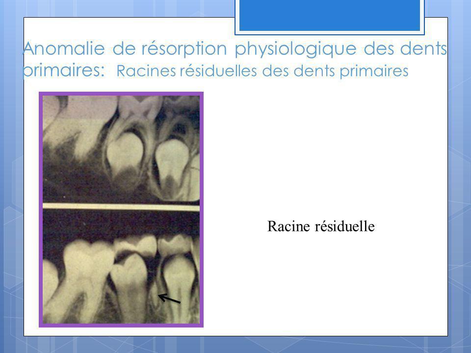 Anomalie de résorption physiologique des dents primaires: Racines résiduelles des dents primaires Racine résiduelle
