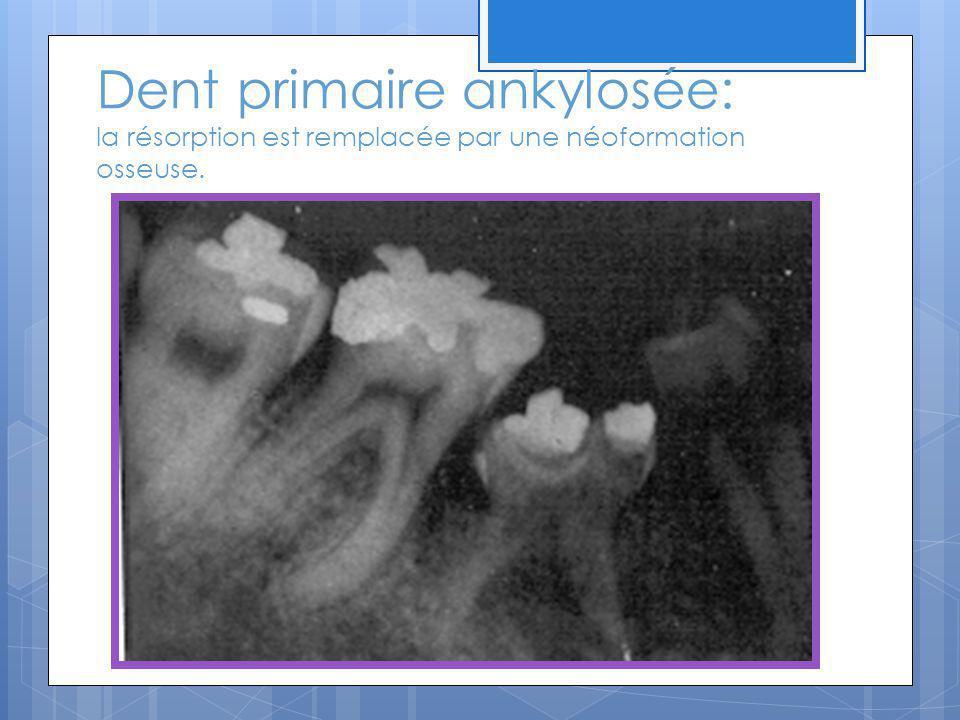 Dent primaire ankylosée: la résorption est remplacée par une néoformation osseuse.