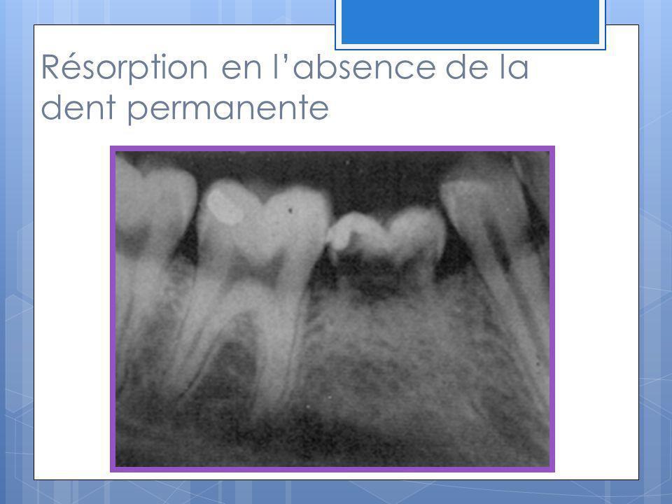 Les résorptions pathologiques Définition : Résorption de tissu dentaire calcifié, impliquant la déminéralisation due à l inversion de l échange cationique (ion à charge positive)et de la résorption lacunaire par des ostéoclastes.