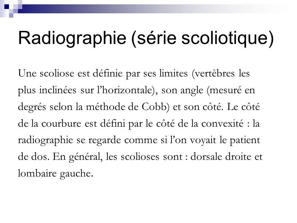 Radiographie (série scoliotique) Une scoliose est définie par ses limites (vertèbres les plus inclinées sur lhorizontale), son angle (mesuré en degrés selon la méthode de Cobb) et son côté.