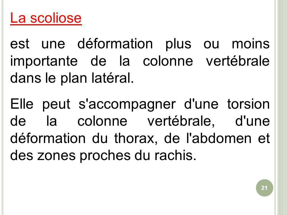 La scoliose est une déformation plus ou moins importante de la colonne vertébrale dans le plan latéral.