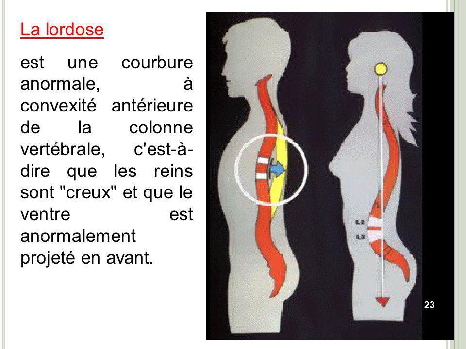 La lordose est une courbure anormale, à convexité antérieure de la colonne vertébrale, c'est-à- dire que les reins sont