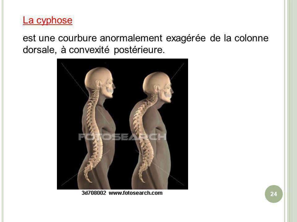 La cyphose est une courbure anormalement exagérée de la colonne dorsale, à convexité postérieure. 24