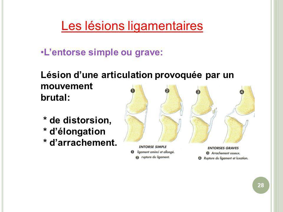 28 Lentorse simple ou grave: Lésion dune articulation provoquée par un mouvement brutal: * de distorsion, * délongation * darrachement. Les lésions li