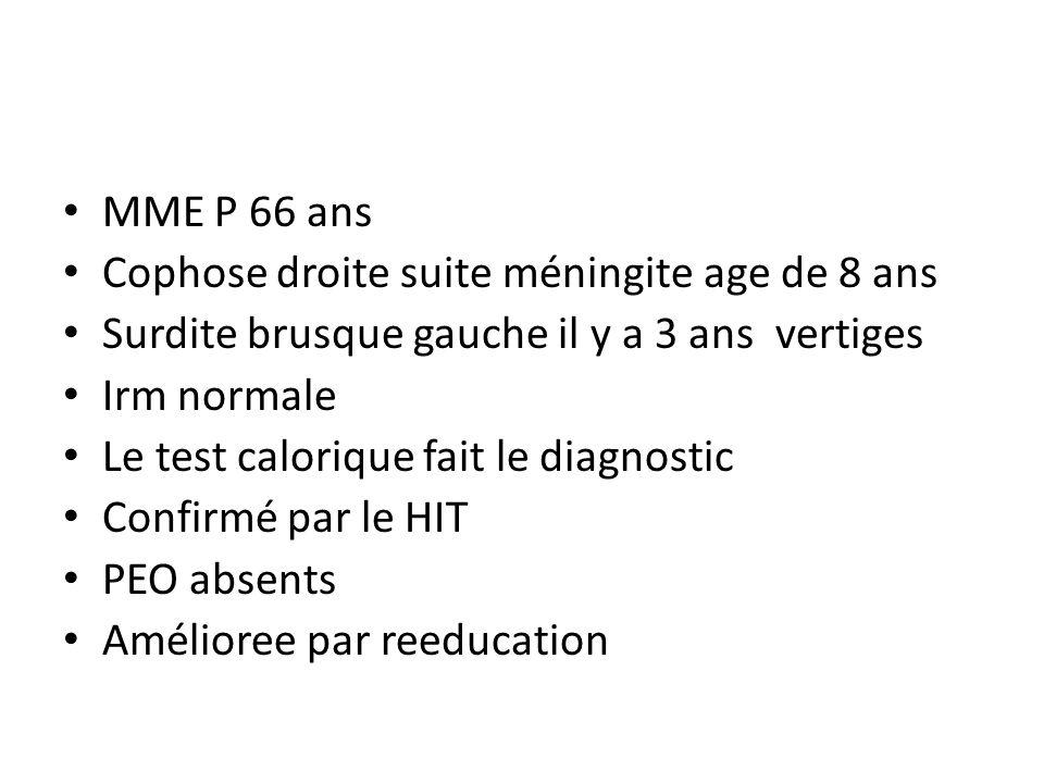 MME P 66 ans Cophose droite suite méningite age de 8 ans Surdite brusque gauche il y a 3 ans vertiges Irm normale Le test calorique fait le diagnostic Confirmé par le HIT PEO absents Amélioree par reeducation