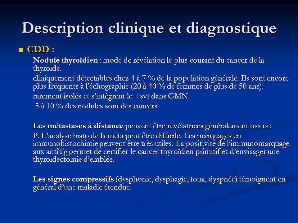 CDD : CDD : Nodule thyroïdien : mode de révélation le plus courant du cancer de la thyroïde. cliniquement détectables chez 4 à 7 % de la population gé
