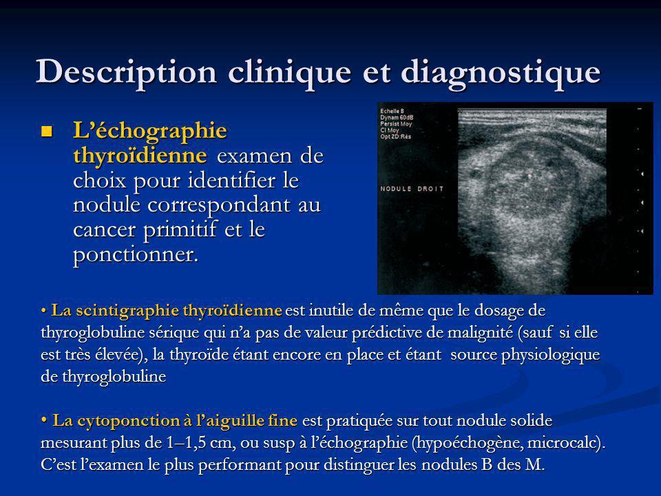 Léchographie thyroïdienne examen de choix pour identifier le nodule correspondant au cancer primitif et le ponctionner. Léchographie thyroïdienne exam