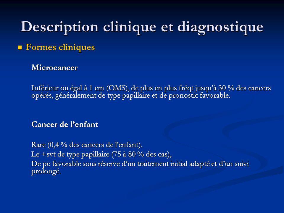 Formes cliniques Formes cliniquesMicrocancer Inférieur ou égal à 1 cm (OMS), de plus en plus fréqt jusquà 30 % des cancers opérés, généralement de typ