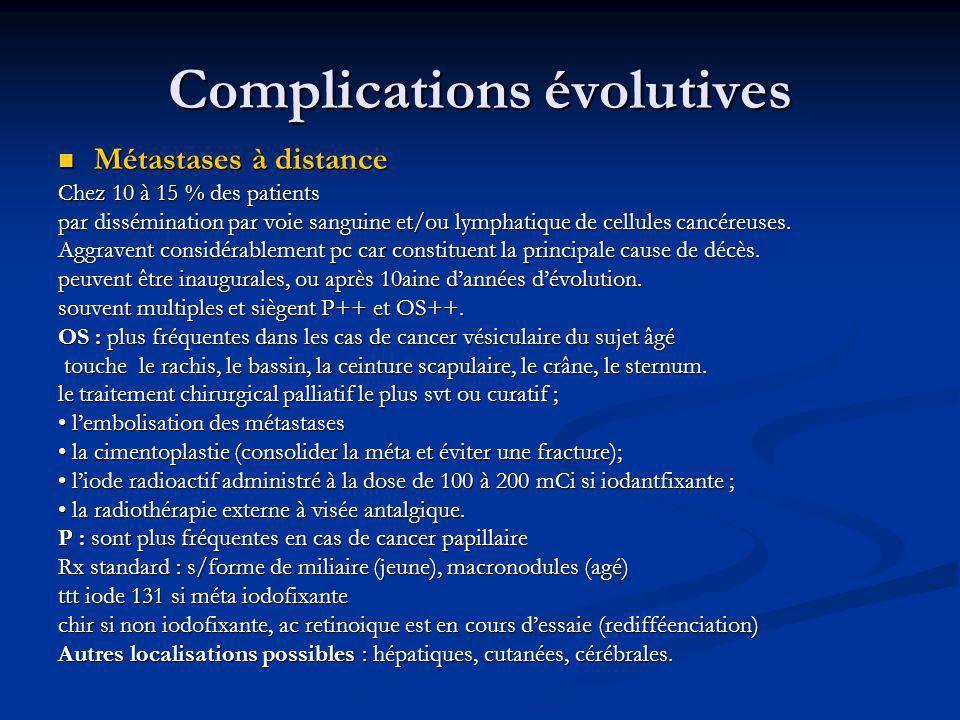 Complications évolutives Métastases à distance Métastases à distance Chez 10 à 15 % des patients par dissémination par voie sanguine et/ou lymphatique