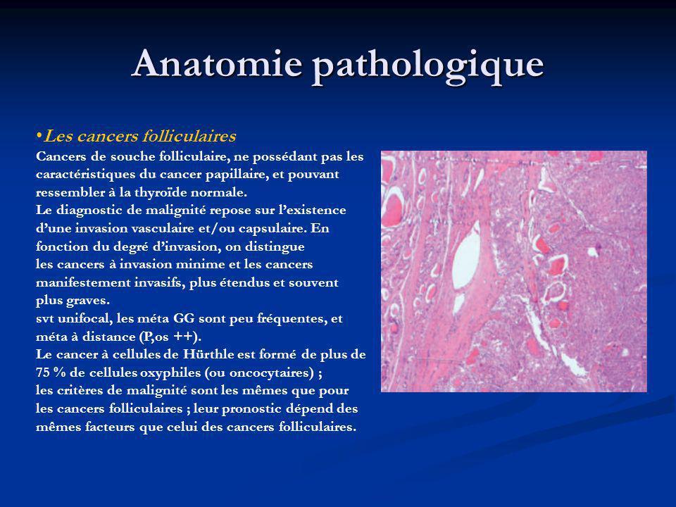 Anatomie pathologique Les cancers folliculaires Cancers de souche folliculaire, ne possédant pas les caractéristiques du cancer papillaire, et pouvant ressembler à la thyroïde normale.