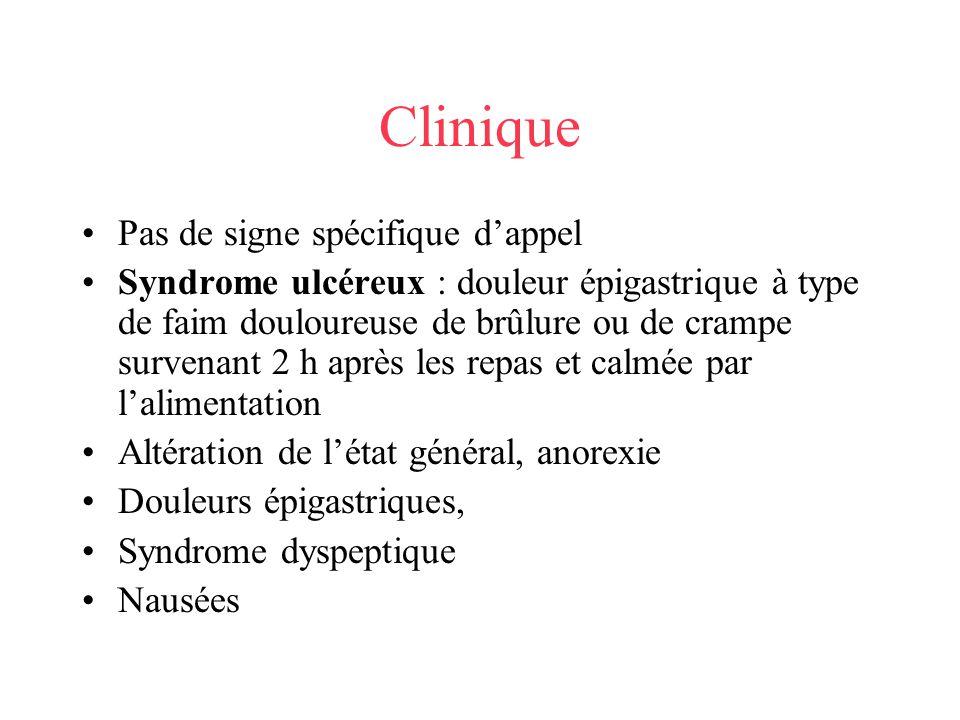 Clinique Pas de signe spécifique dappel Syndrome ulcéreux : douleur épigastrique à type de faim douloureuse de brûlure ou de crampe survenant 2 h aprè