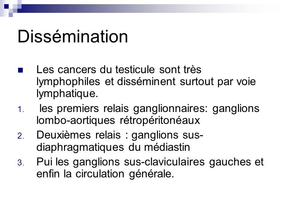 Dissémination Les cancers du testicule sont très lymphophiles et disséminent surtout par voie lymphatique. 1. les premiers relais ganglionnaires: gang