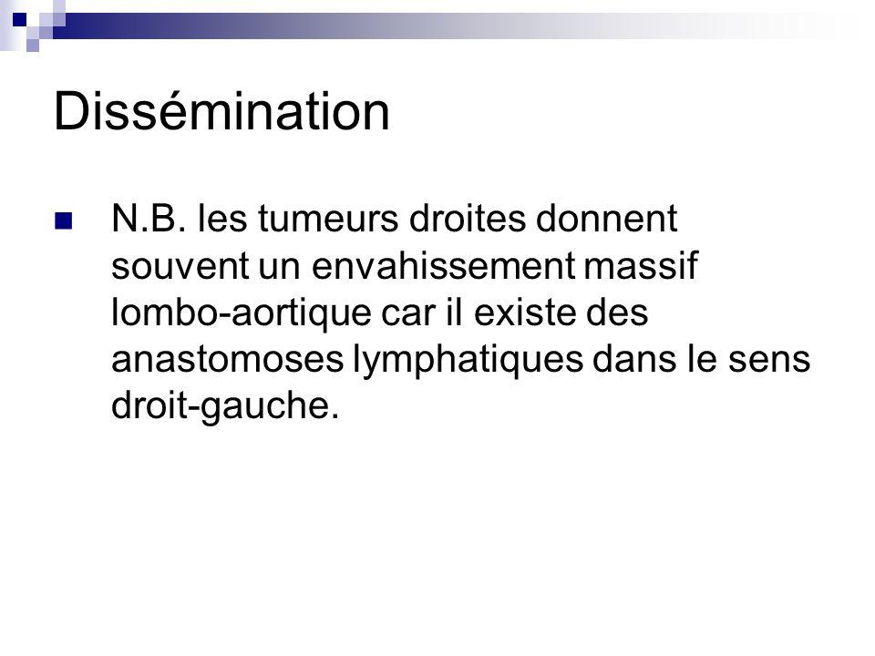 Dissémination N.B. les tumeurs droites donnent souvent un envahissement massif lombo-aortique car il existe des anastomoses lymphatiques dans le sens