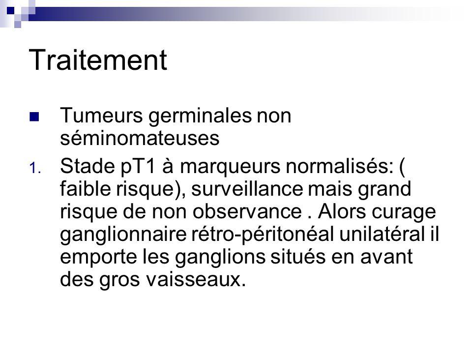 Traitement Tumeurs germinales non séminomateuses 1. Stade pT1 à marqueurs normalisés: ( faible risque), surveillance mais grand risque de non observan
