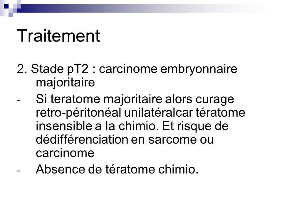 Traitement 2. Stade pT2 : carcinome embryonnaire majoritaire - Si teratome majoritaire alors curage retro-péritonéal unilatéralcar tératome insensible