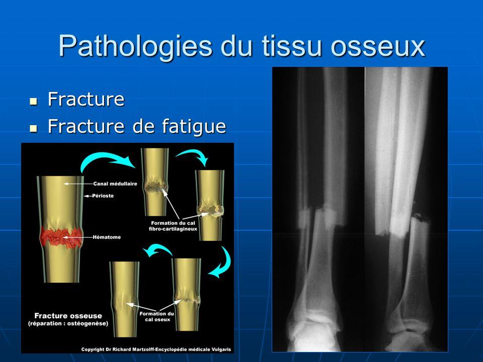 Pathologies du tissu osseux Fracture Fracture Fracture de fatigue Fracture de fatigue