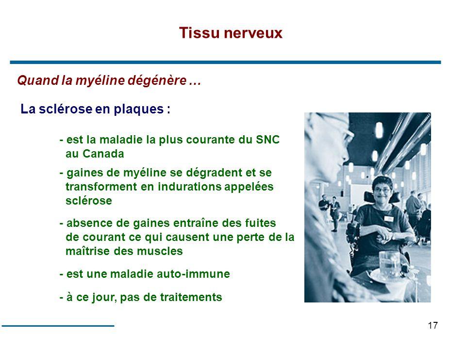 17 Quand la myéline dégénère … La sclérose en plaques : - est la maladie la plus courante du SNC au Canada - gaines de myéline se dégradent et se tran
