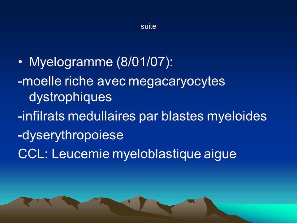 suite Myelogramme (8/01/07): -moelle riche avec megacaryocytes dystrophiques -infilrats medullaires par blastes myeloides -dyserythropoiese CCL: Leucemie myeloblastique aigue