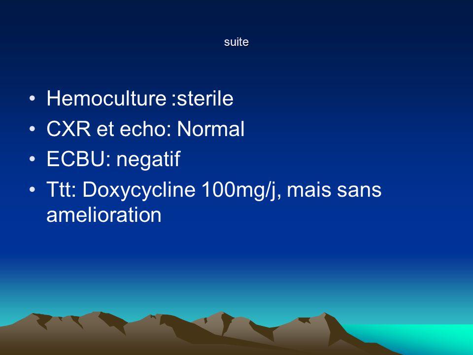 Traitements supplémentaires On peut ajouter Rituximab (anticorps monoclonal) Hypouricémiant à débuter avant le traitement(allopurinol) Antiémétiques Bactrim fort : 1 cp