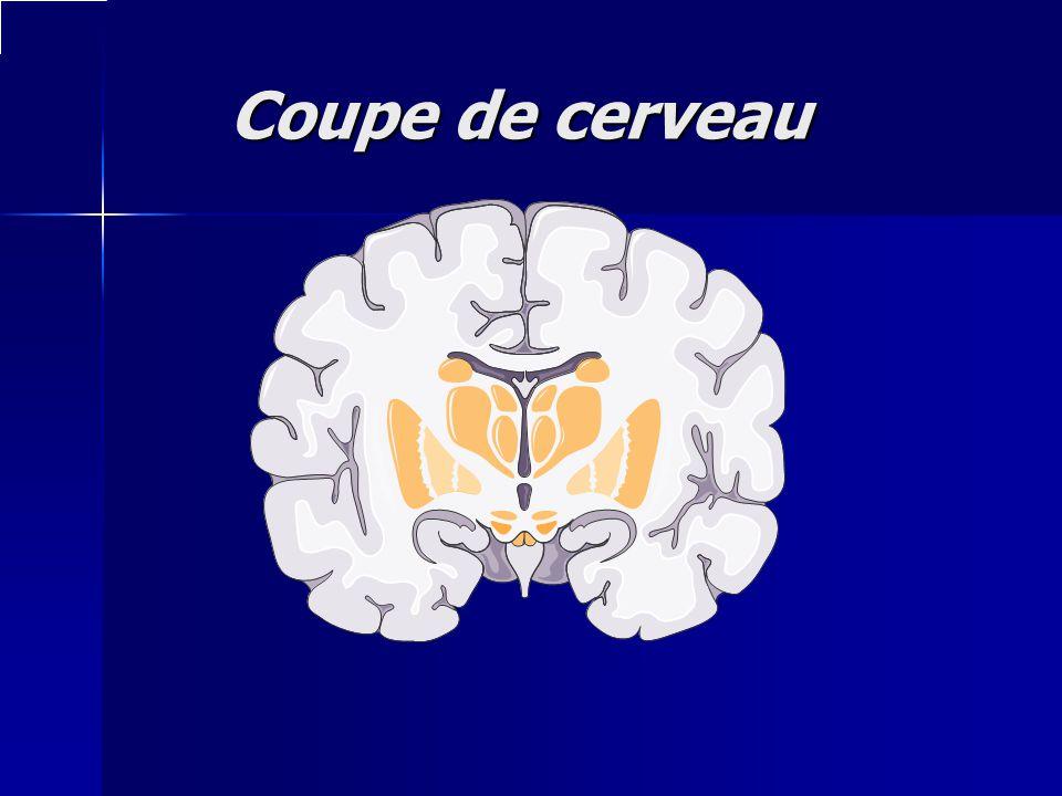 Coupe de cerveau