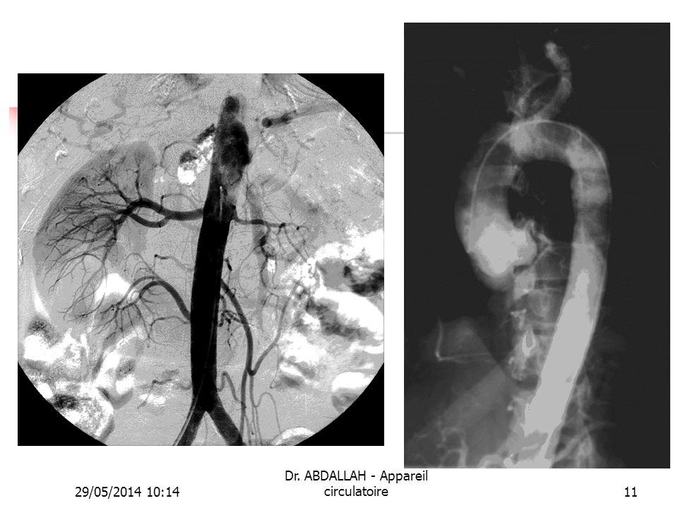 29/05/2014 10:16 Dr. ABDALLAH - Appareil circulatoire11