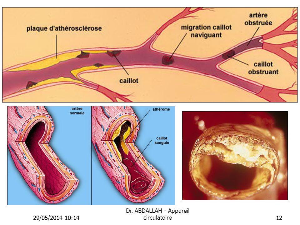 29/05/2014 10:16 Dr. ABDALLAH - Appareil circulatoire12
