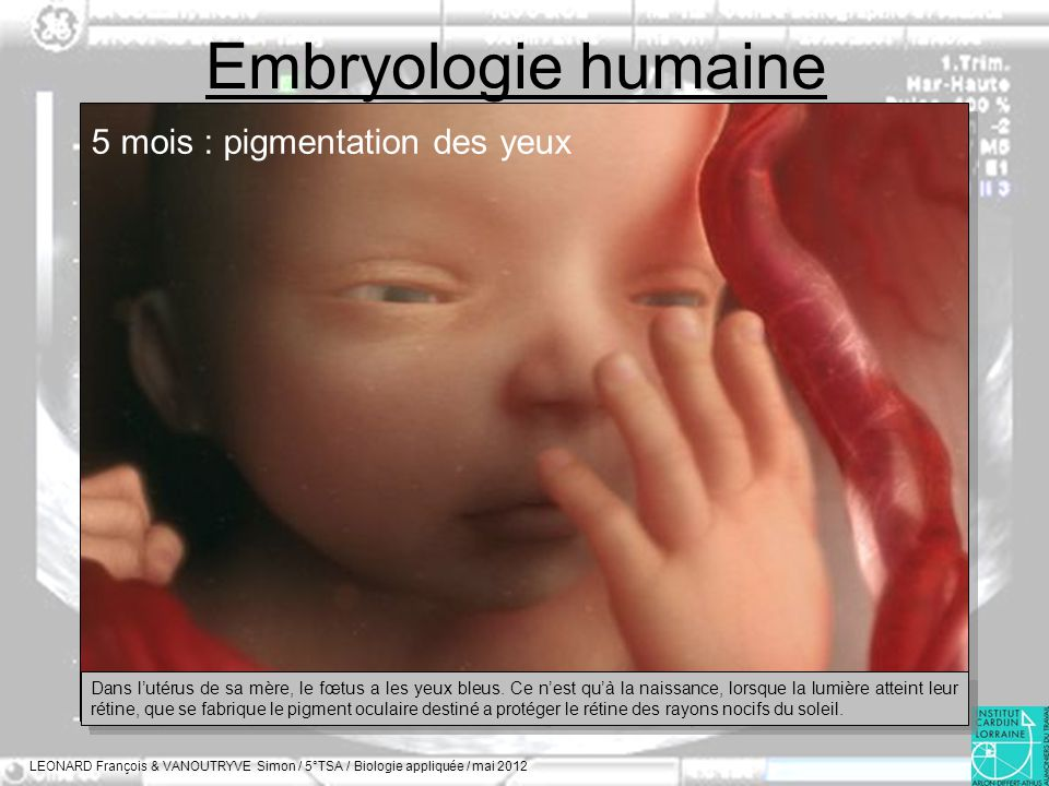 Embryologie humaine LEONARD François & VANOUTRYVE Simon / 5°TSA / Biologie appliquée / mai 2012 5 mois : pigmentation des yeux Dans lutérus de sa mère